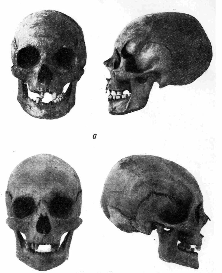 Рис. 17. а — череп Анны — первой жены Ярослава; 6 — череп Ингигерд — второй жены Ярослава.
