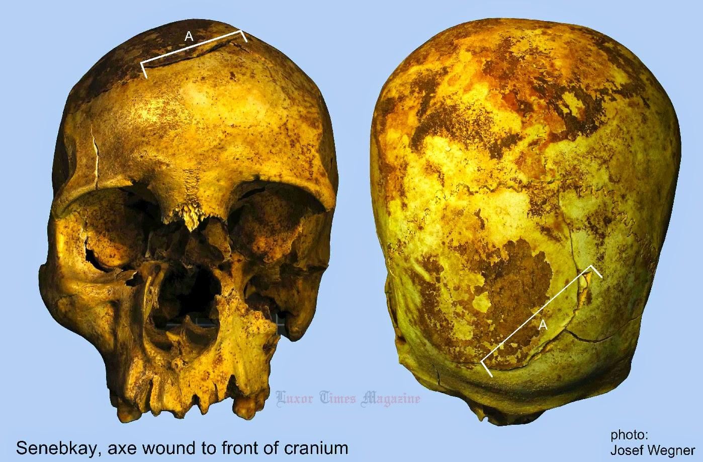Раны на передней части черепа Сенебкая, нанесенные топором.