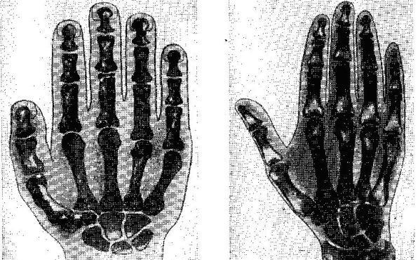 Кисть руки неандертальца из Киик-Кобы (реконструкция) и рентгенограмма кисти руки современного человека