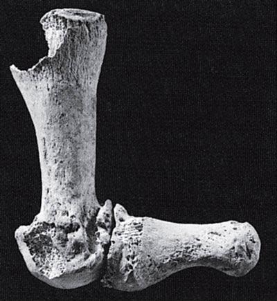 Рис. 16.9. Деформированные кости пальцев ног женщины из селения Абу Хурейра, Сирия
