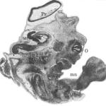 Рис. VIII. 1. Тотальный сагиттальный срез эмбриона человека, вероятный возраст 6-7 недель(окраска по Нисслю; увеличение 42,5:1). Срез проходит на уровне proeencephalon (Pr), metencephalon (Mt), надбровной дуги, лобной пазухи верхнего и нижнего век глаза (О), продольного разреза формирующейся руки (mn), а также на уровне целого пучка задних черепно-мозговых нервов (VII. VIII, IX. X).