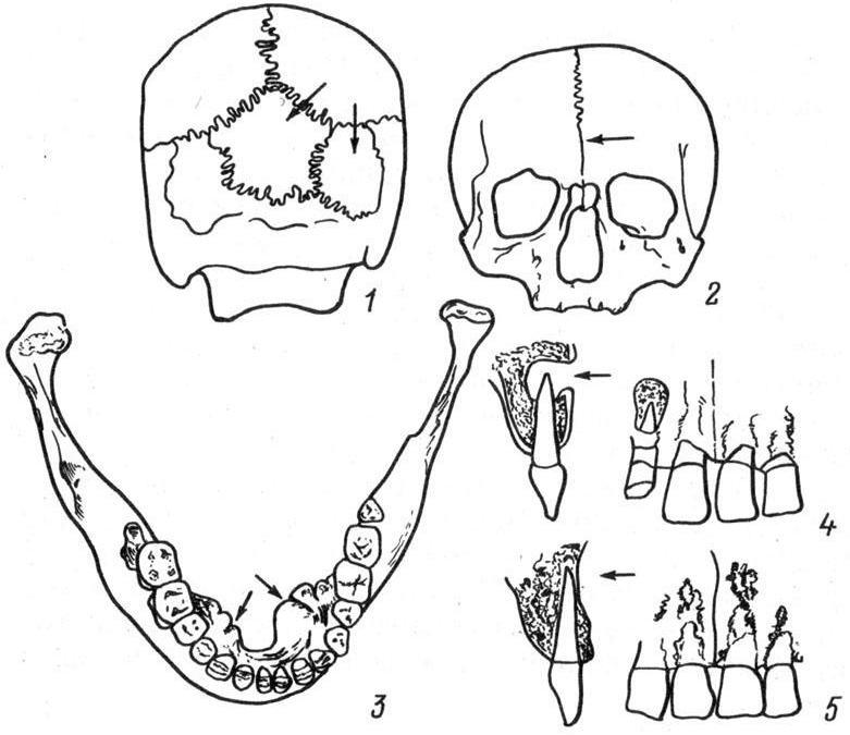 Рис. 13. Возможные изменения формы костей черепа. 1 — череп с костью инков; 2 — череп с метопическим швом; 3 — нижняя челюсть с выраженным torus mandibularis; 4 — прижизненные разрушения верхней челюсти; 5 — посмертные разрушения верхней челюсти, которые можно спутать с прижизненными.