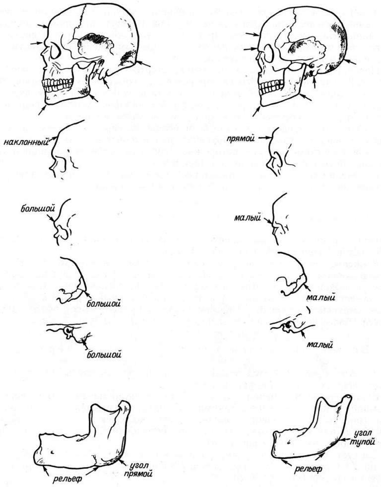 Рис. 11. Признаки пола на черепе. Слева — мужской череп, справа — женский.