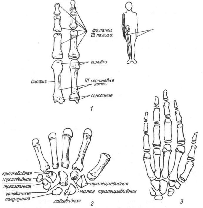 Рис. 22. Кости кисти. 1 - фаланги III пальца и III пястневая кость (слева — тыльная поверхность, справа - ладонная); 2 — кости запястья; 3 — возрастные особенности строения (кисть 10-летнего ребенка).