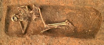 Фото скелета