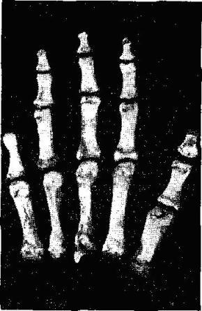Кости правой руки кисти женщины эпохи мезолита с ампутированной фалангой мизинца
