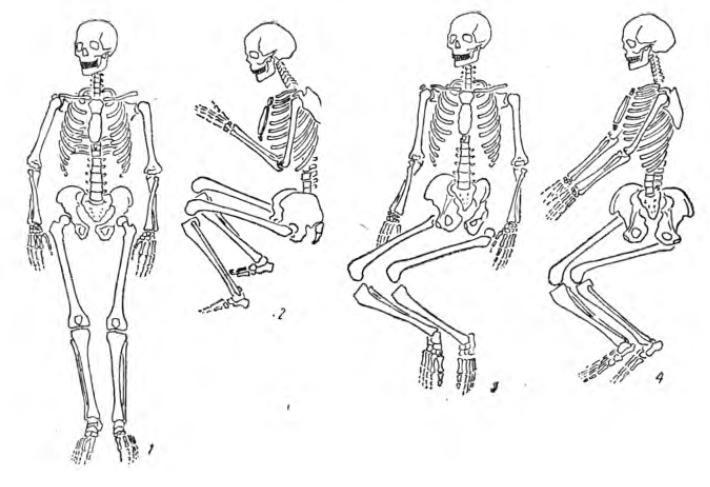 Рис. 1. Варианты расположения скелетов погребенных в могиле
