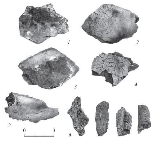 Рис. 2. Могильник Кедровая Роща, курган 5, погребение 1 1 - фрагмент теменной кости взрослого мужчины. Хорошо видны области черной, серой и бурой окраски, границы черной пигментации четко определены; 2 - фрагмент свода черепа. Характер растрескивания не соответствует стандарту, определенному для деформационных трещин при кремации свежей костной ткани; 3 - внутренняя поверхность фрагмента свода черепа. Хорошо видны четкие края темного пятна; 4 - фрагмент свода черепа. Характер растрескивания не соответствует стандарту, определенному для деформационных трещин при кремации свежей костной ткани, цветность внешней костной пластинки резко отличается от цвета губчатого слоя; 5 - фрагмент середины тела нижней челюсти в области подбородочной ости (Spina mentalis). Хорошо заметно контрастное различие цветов внешней костной пластинки и губчатого слоя; 6 - фрагмент плоской кости и ребер со следами хронического воспалительного процесса