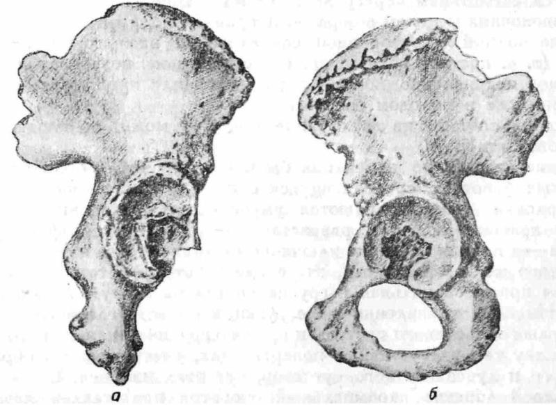 Рис. 9. а — правая безымянная кость Ярослава Мудрого. Изменение формы и рас— положения вертлужной впадины на почве подвывиха бедренной кости кверху и квади (сравнить с формой и расположением нормальной вертлужной впадины на рис, 96). Суставная поверхность окаймлена костными разрастаниями; 6 — нормальная левая безымянная кость Ярослава.