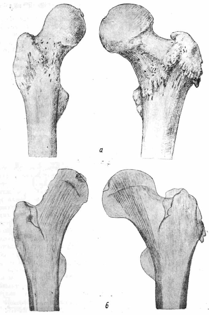 Рис. 10. а — обе бедренные кости Ярослава. Правая бедренная кость тоньше, чем левая (атрофия правой бедренной кости). Угол между шейкой и остальной частью правой бедренной кости больше, чем в здоровой (левой) бедрелной кости. Увеличение угла шейки в значительной мере компенсировало наличие подвывиха в правом тазобедренном суставе; 6 — верхние отделы обеих бедренных костей в рентгеновском изображении. В шейке правой, более тонкой (атрофированной) бедренной кости хорошо видны утолщенные вертикальные пластинки на воем протяжении шейки. Это — проявления приспособления к новым условиям нагрузки в правом тазобедренном суставе. Сустав этот функционировал в общем довольно удовлетворительно, но нагрузка падала на всю головку. В здоровой левой бедренной кости лишь часть вертикальных пластинок в шейке отличается значительной толщиной (что свидетельствует о нормальной нагрузке на этот сустав).
