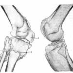 Рис. 13. Кости обоих коленных суставов в рентгеновском изображении. Хорошо видны следы старого сросшегося околосуставного перелома обеих костей правой голени (2, 3). Резкая атрофия костей, участвующих в образовании правого коленного сустава. 1 — надколенник, сросшийся с бедренной костью (костный анкилоз); 2 — след старого сросшегося перелома правой большеберцовой кости; 3 — след старого сросшегося перелома малоберцовой кости.