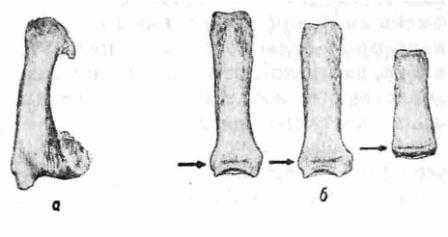 """Рис. 8. а — первая правая пястная кость Ярослава Мудрого. Старый сросшийся внутрисуставной перелом в области основания пястной ости. Мощные вторичные костные разрастания. Объем движений в этом суставе был ограничен. В области головки этой кости видны краевые костные разрастания, возникшие в результате хронической перегрузки; 6 — короткие трубчатые кости Ярослава (две основные и одна средняя фаланга). Отсутствие проявлений старения. Сохранение поперечной пластинки (поперечный """"тяж"""" отмечен стрелкой) в области бывших зон роста как косвенное проявление некоторого субгенитализма."""